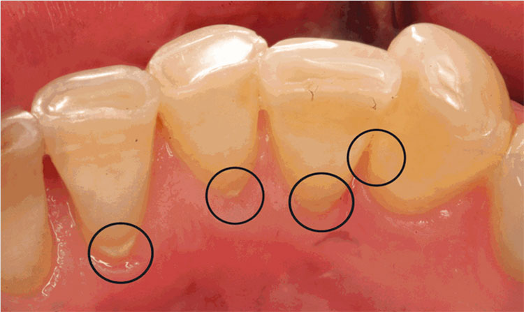 how to stop a cavity from getting worse naturally