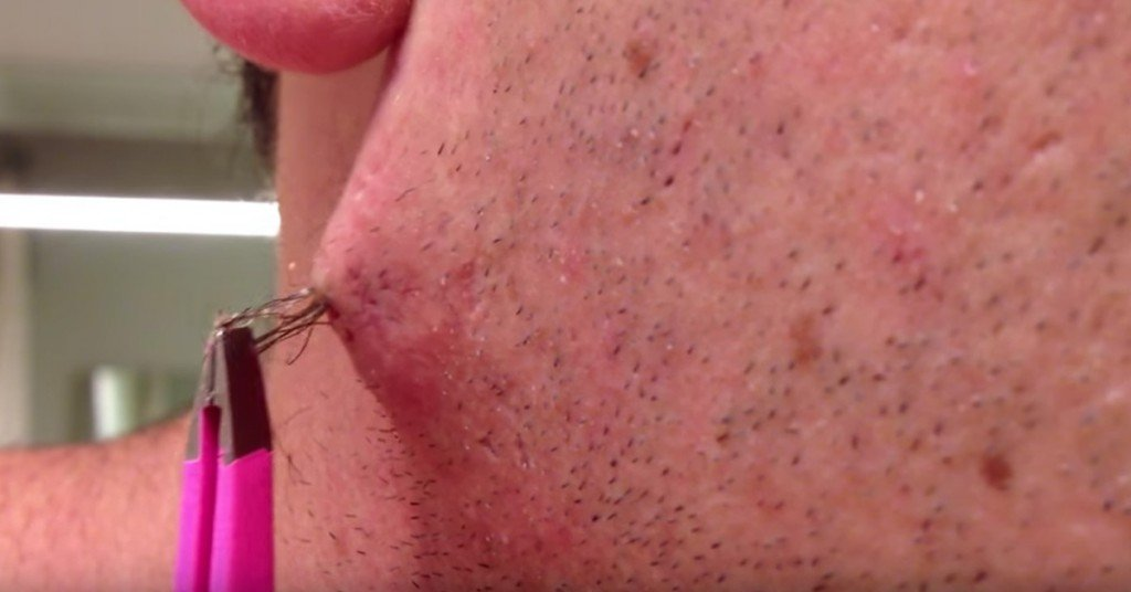 Can You Get Through This Guy Removing A Huge Ingrown Hair