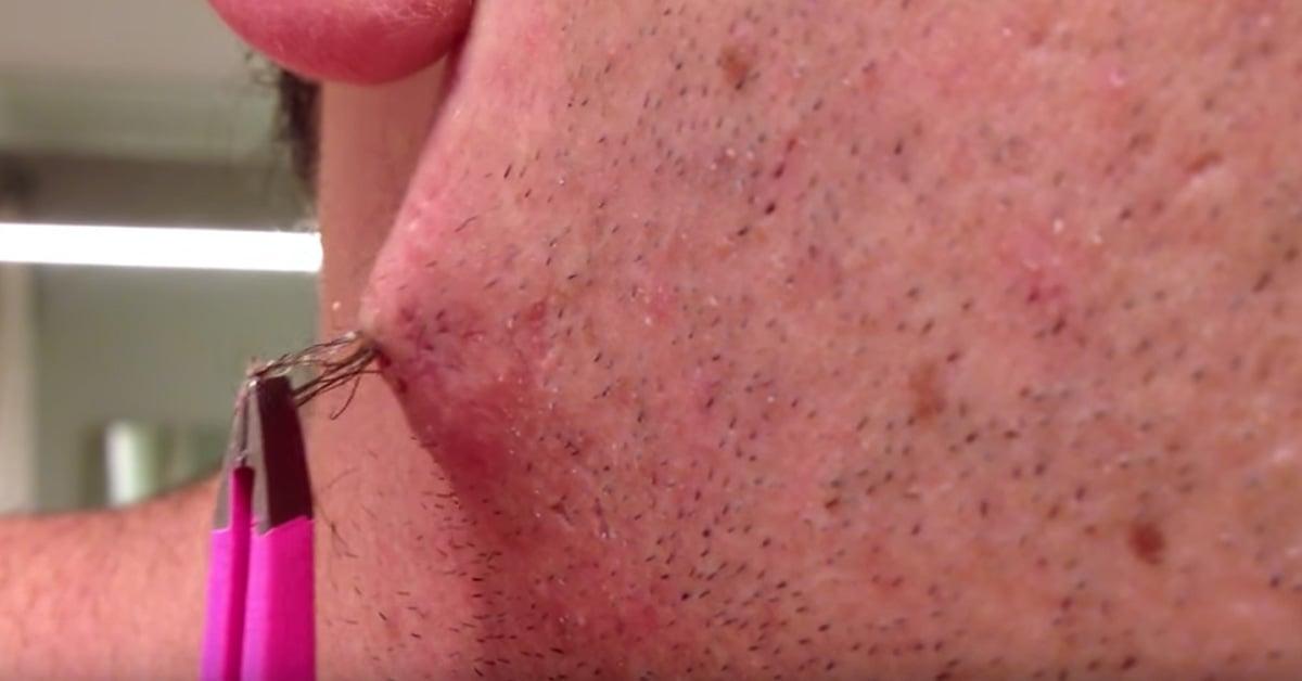 Dry Pubic Hair Ingrown Hair On Penile Shaft Removal