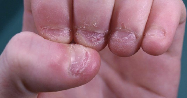 Why You MUST Stop Biting The Skin Around Your Fingernails