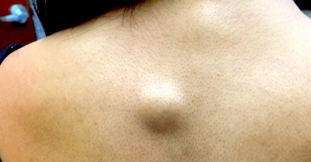 Cysts On Back | www.pixshark.com - Images Galleries With A ...