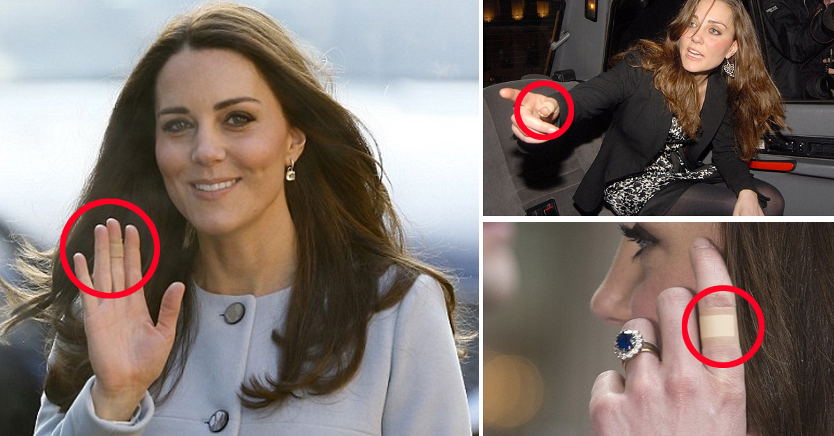 The Reason Kate Middleton Often Has Plasters On Her Hands
