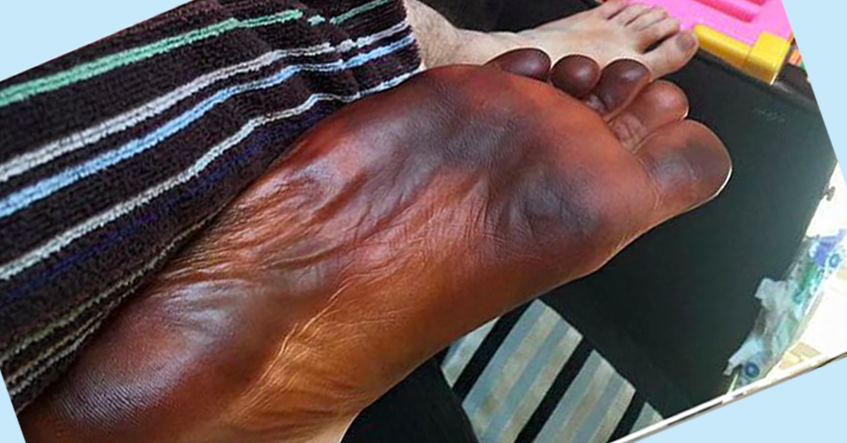 Guy Was Convinced He Had Frostbite After Wearing Girlfriend's Fake-Tanning Sock!