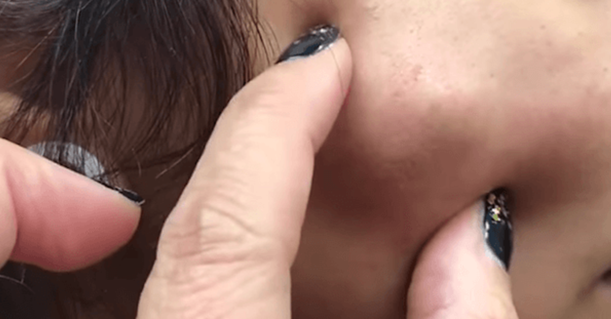 "Dr Pimple Popper Bursts This Patient's Huge ""Cheeky"" And ""Percystent"" Cyst"