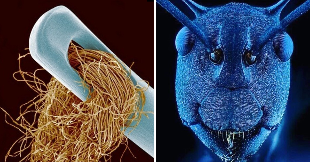 20 Things That Look Truly Amazing When Viewed Through A Microscope