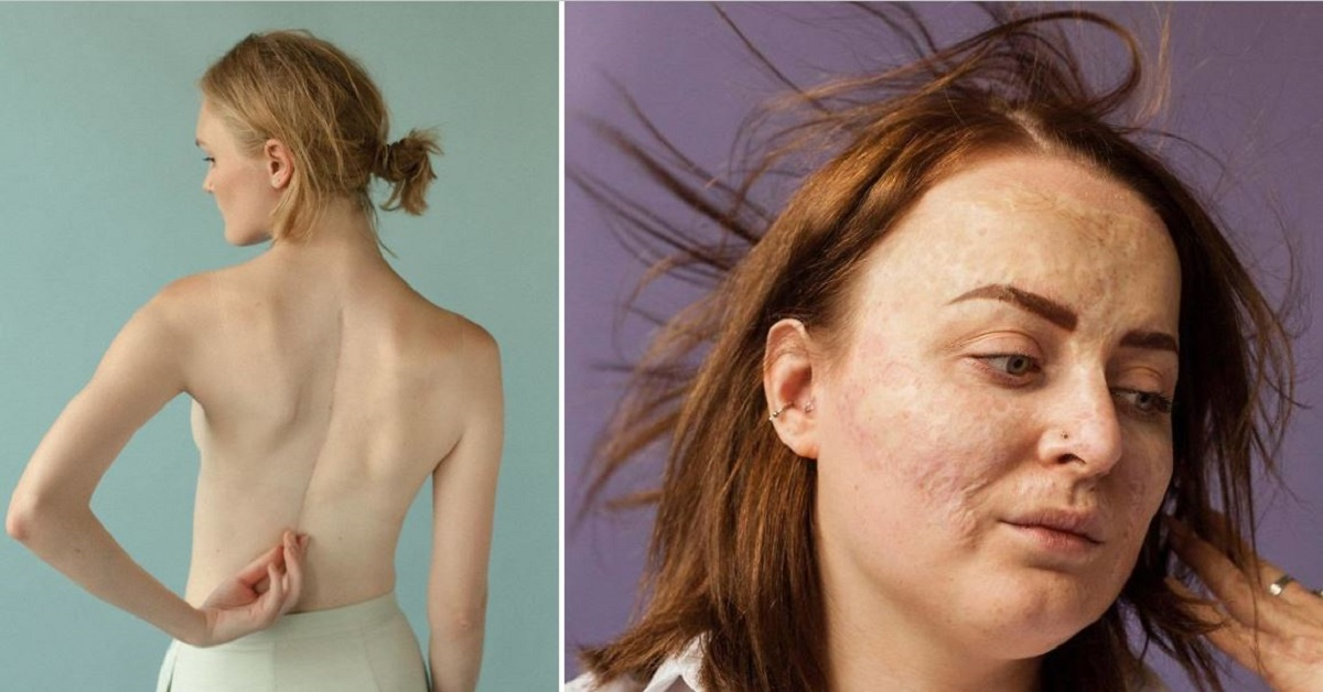 People Reveal Their Scars And Their Stories In Powerful Photos