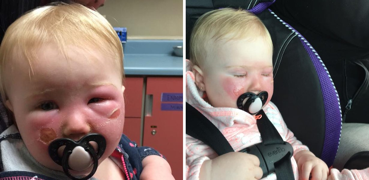 Mom Issues Warning To Others About Using Aerosol-Based Sunscreen For Small Kids