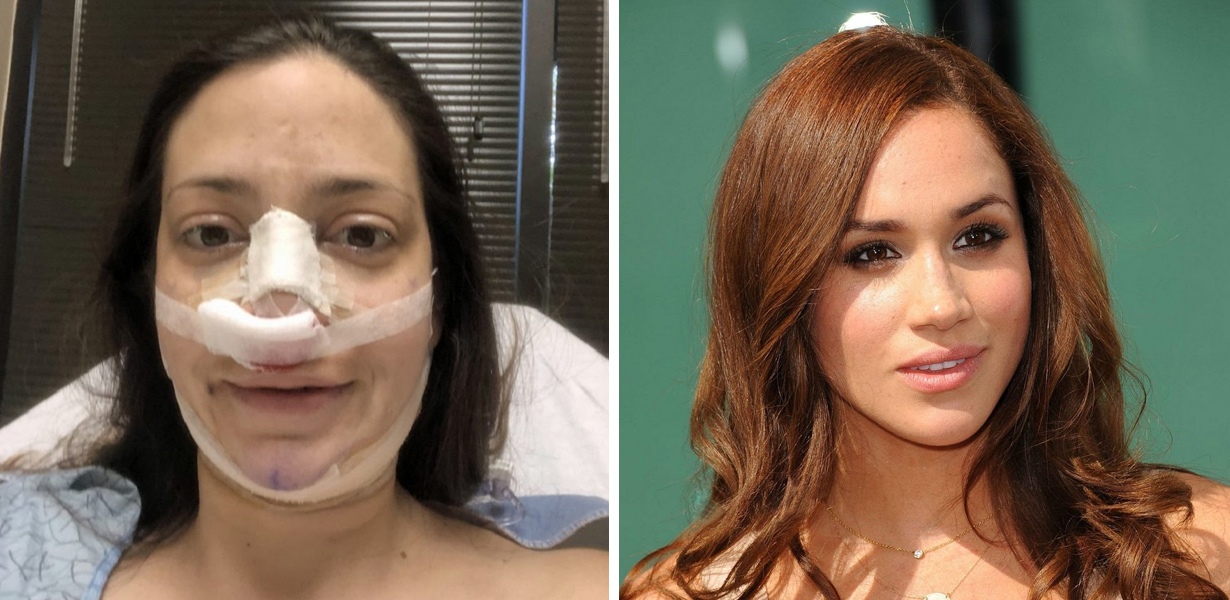 Mom Spends $20,000 On Surgery To Look Like Meghan Markle, Says Her Kid Can't Tell The Difference