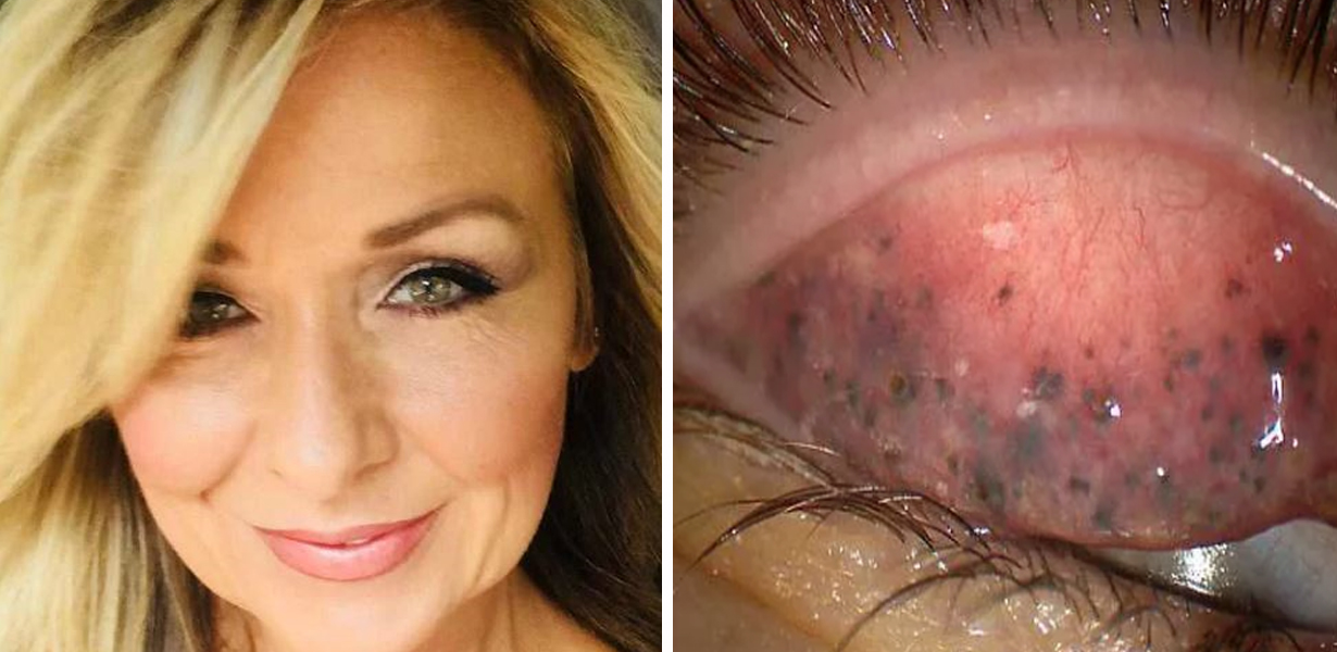 Woman Nearly Goes Blind After Failing To Clean Off Mascara For Over 25 Years