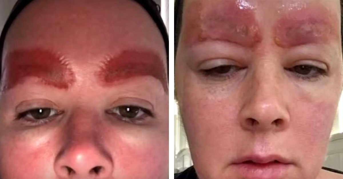 """Micro Blading """"Beauty Procedure"""" Leaves Woman's Eyebrows Horribly Infected"""