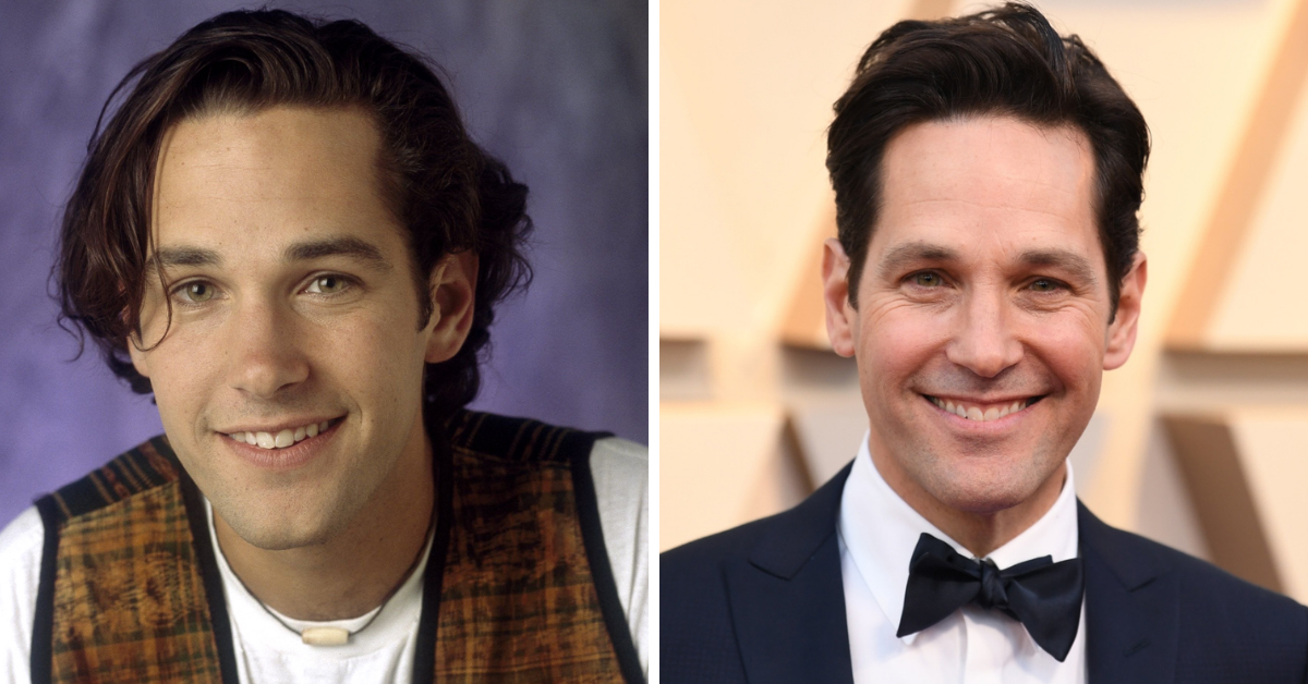 Here's how celebrity faces have changed in the past 30 years.